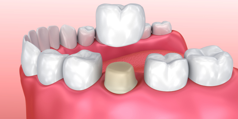 Ask a Family Dentist: Why Would I Need a Dental Crown?